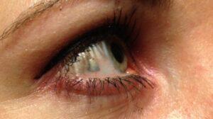 Gioiello-in-platino-nel-bulbo-oculare